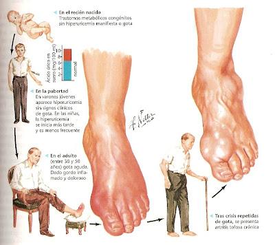 como eliminar calculos renales de acido urico alimentos permitidos y prohibidos con acido urico que es gota en el pie