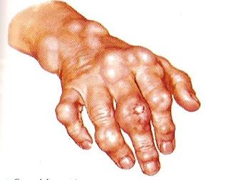 remedios acido urico gota alimentos no prohibidos para el acido urico acido urico na urina sintomas