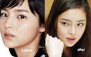 nose park shiyeon c1 Gadis Cantik Hot