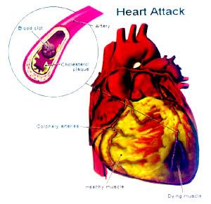 Darah Rendah, Darah Tinggi, Darah Tinggi Usia Muda, Gejala Darah Tinggi, Makanan Darah Tinggi, Obat Darah Tinggi, Obat Tradisional darah Tinggi, Pengobatan Darah Tinggi