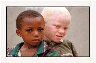 Niños africanos. ¿Diferentes?