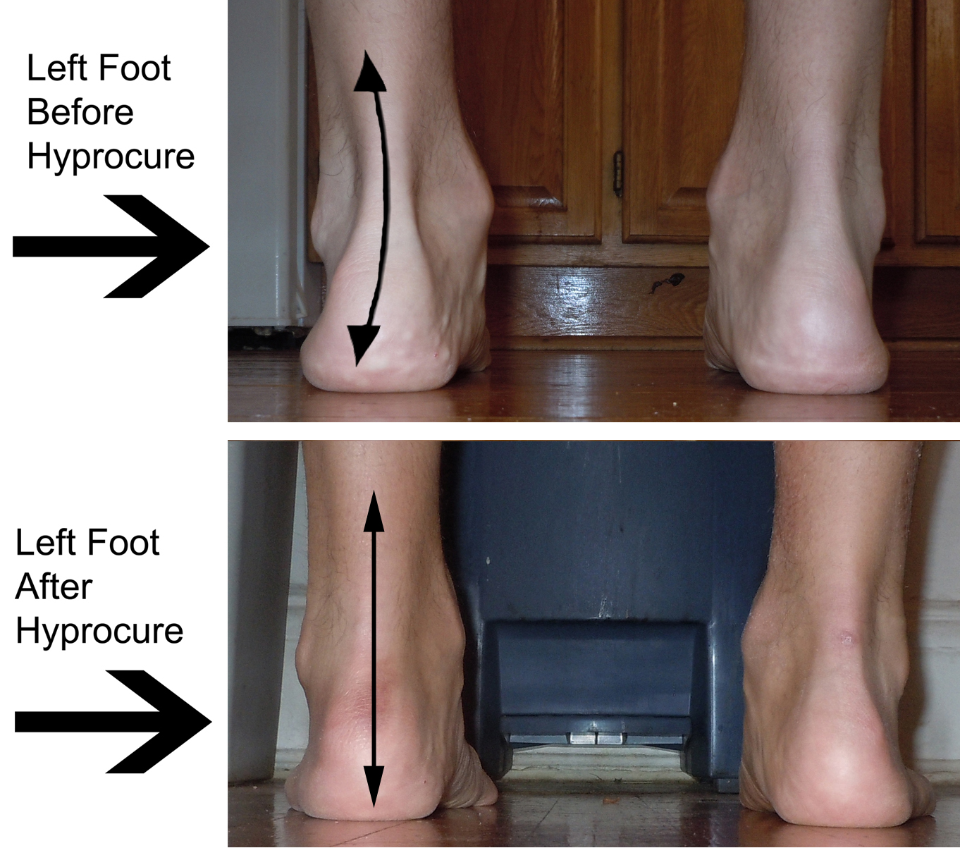 Hyprocure Implant - Flat Feet Corrective Surgery Ankle Pronation Surgery