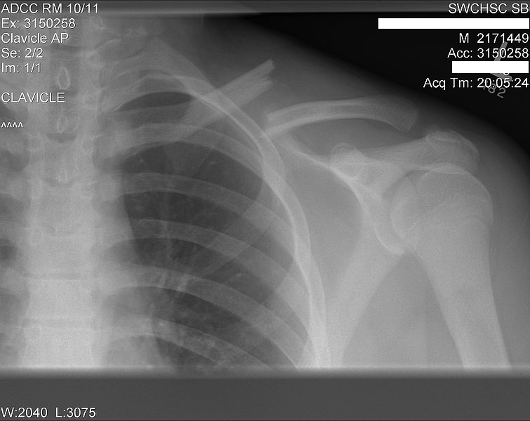 how to break a collarbone