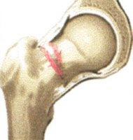 Doenças nos ossos causa e tratamento