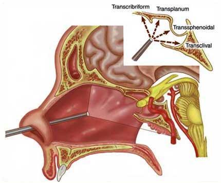 cirurgia de base de crânio