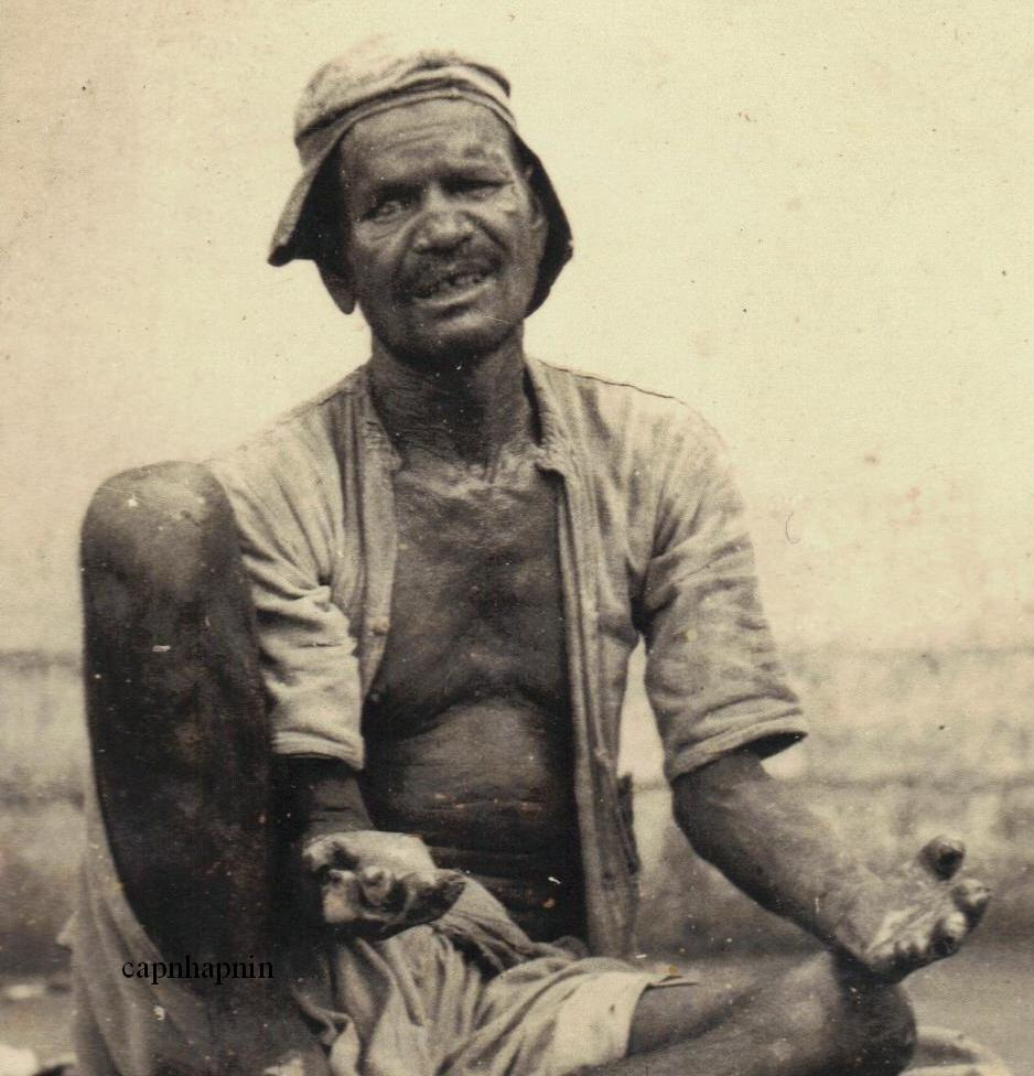 Leper Man Begging -  India 1930's