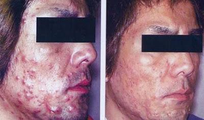 Terapia fotodinamica em dermatologia 34