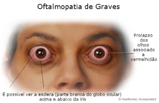 Oftalmopatia de Graves