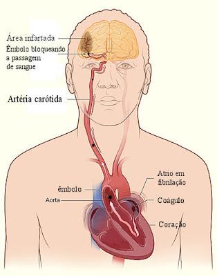 AVC - Fibrilação atrial e embolia cerebral
