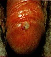 Sífilis primária - cancro duro