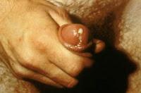 Gonorreia - saída de pus pela uretra