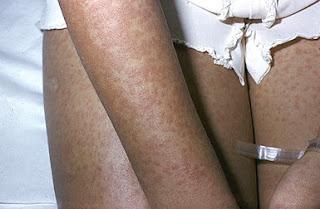 Mononucleose - rash