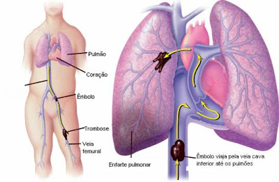 Embolia pulmonar
