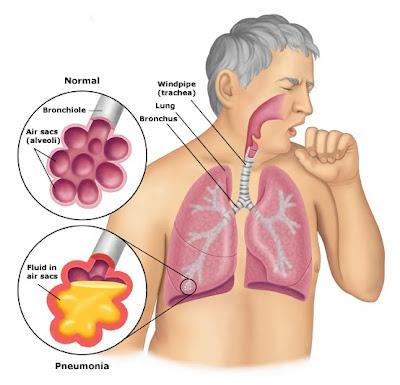 Bacilo de koch tuberculosis pdf