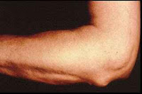 Nódulo subcutâneo na febre reumática