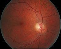 Fundo de olho normal