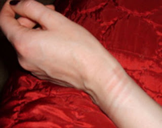 wrist rope marks