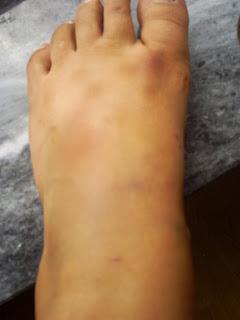 blå på foten