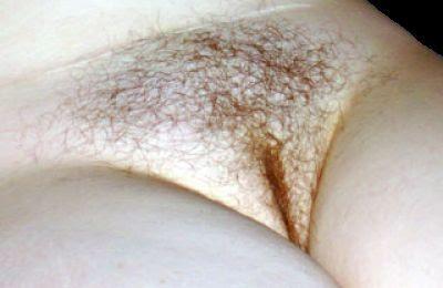 Vulva Picture172
