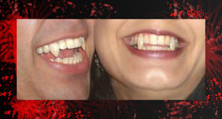 como fazer dente de vampiro