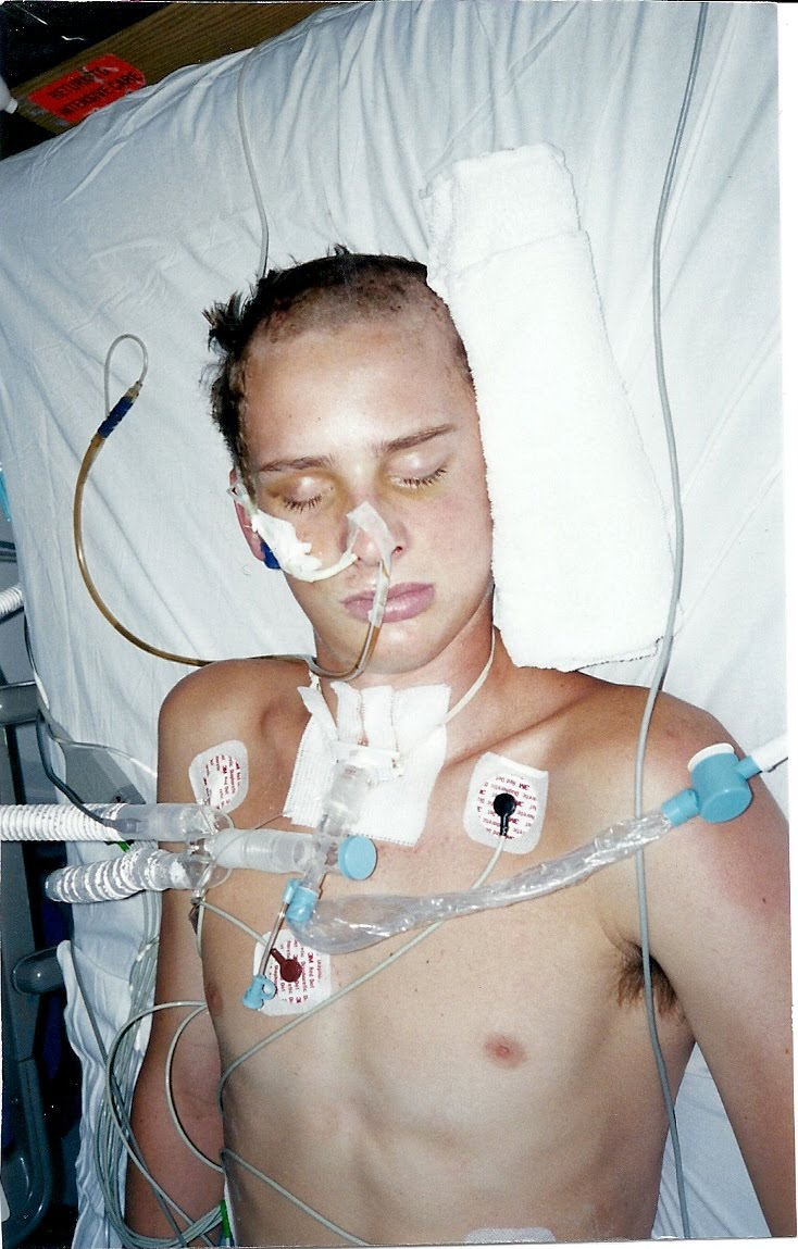Kendall Neuner Hot Brad's accident pictures.
