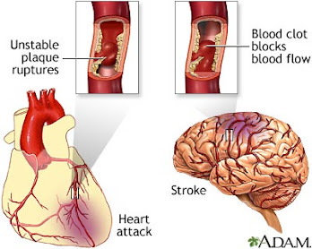 Heart Attack ~ Stroke are you at risk?