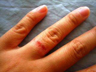 Similiar Wedding Ring Rash Keywords