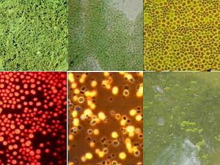 Cyanobacteria, many forms, Anabva, Microcy, bloom
