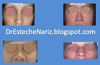 LEPTO EXAMEN GENERAL DE NARIZ Y CARA | Rinoplastia | Part 5 | Kosmetische Nasenoperation | Rhinoplasty | parte 5 | General Examination Of The Nose And The Face