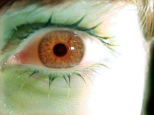 ojo con el ojo