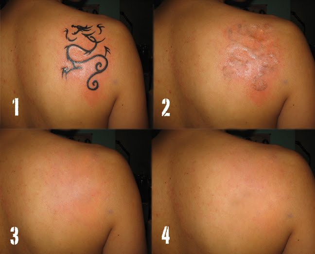 Post Dermabrasion tattoo removal involves cleaning the area and