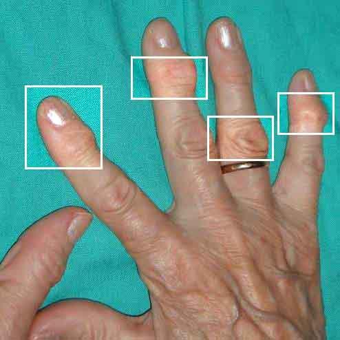 Como sanar la psoriasis sobre las uñas de los pies