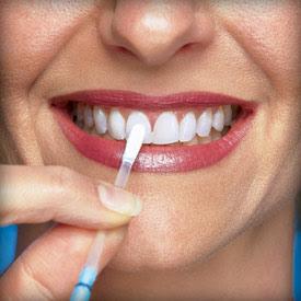 Blanchir dents Blanchiment des dents avec kit