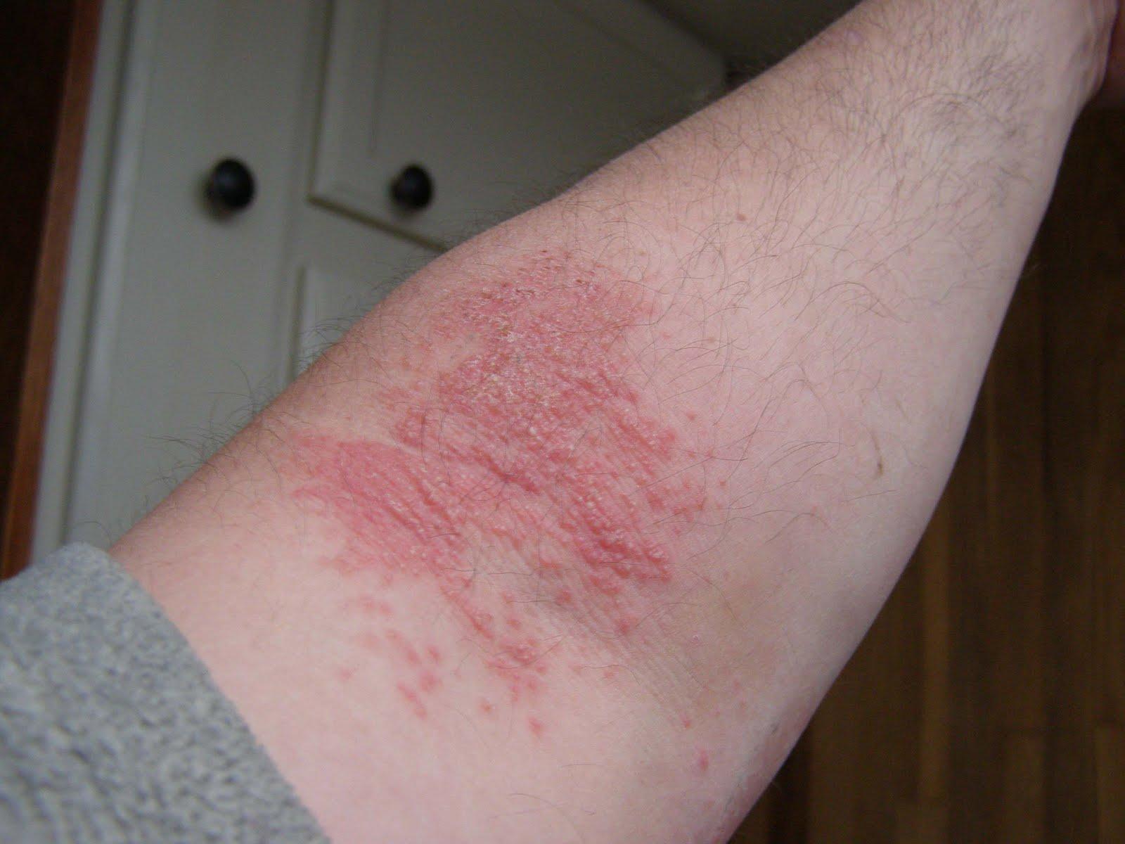 coffee allergy rash