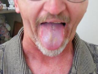 Tongue Sores: Tongue Sores