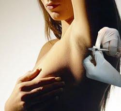 terleme botoks tedavisi EL VE KOLTUK ALTINDA AŞIRI TERLEME