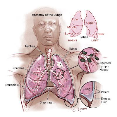 mesothelioma patient