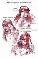 pain migraine