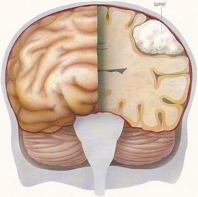 o que é tumor no cerebro