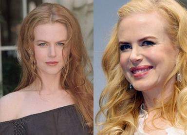 nicole kidman antes y despues del botox fotos