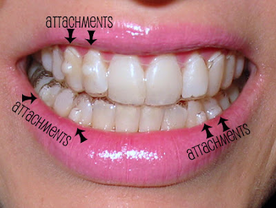 Slideshow: Cosmetic Dentistry -- Before-and-After Pictures