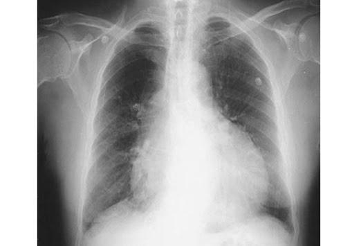 heart effusion Pulmonary effusion | definition of Pulmonary effusion by.