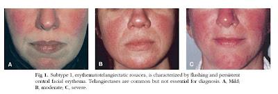 kortikosteroid krim wajah