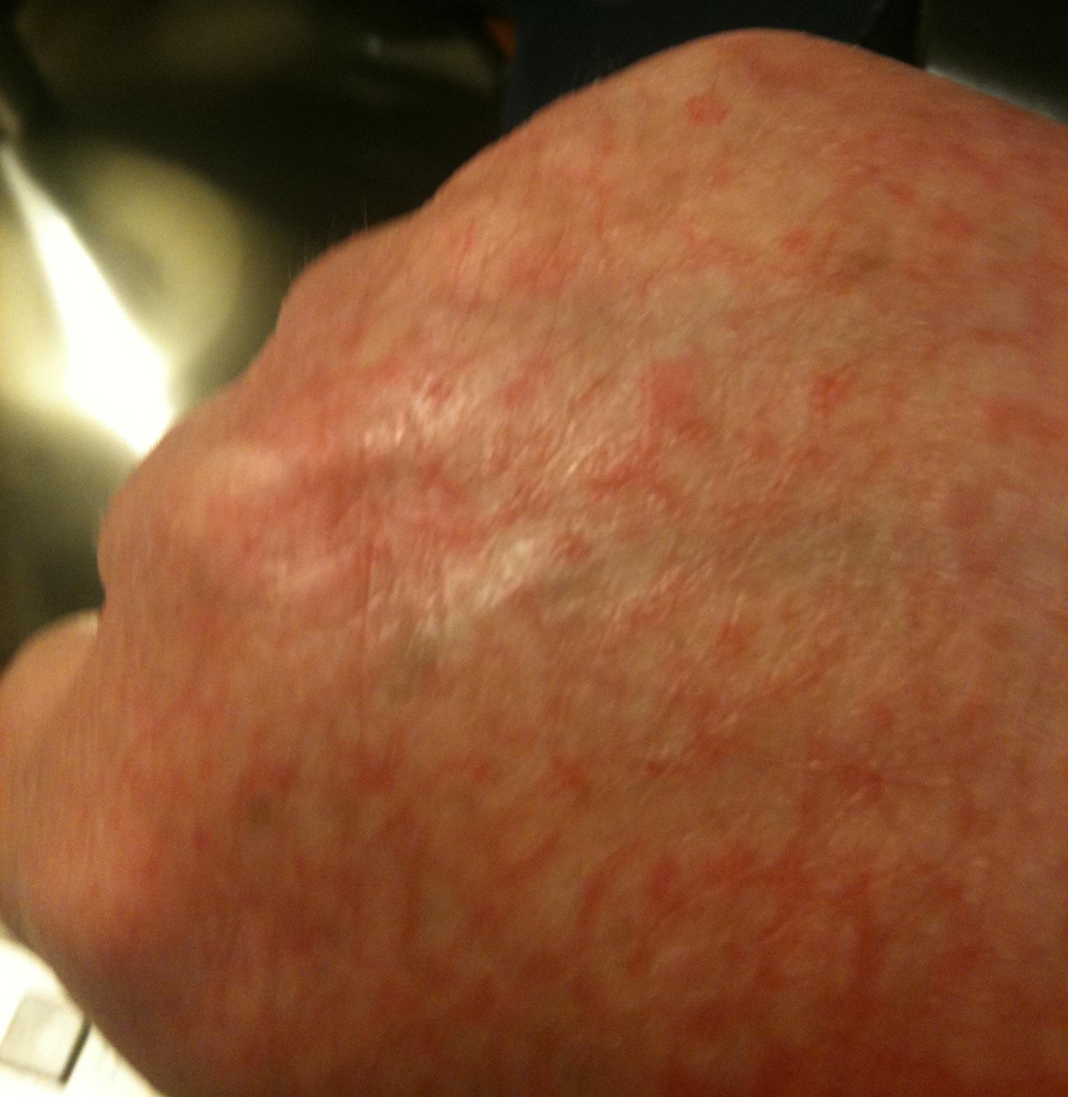 dermatitis on top of hands - photo #39