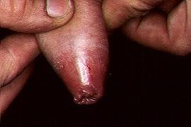 irritacion en el cuero del pene