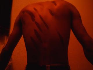 I segni delle frustate sulla schiena di un militante saharawi