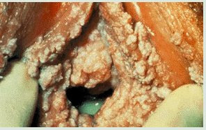 cervical cancer does not have symptoms until it is quite advanced for ...