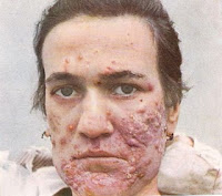 hard nodule pimples