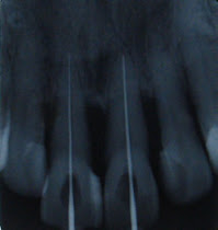 Root Canal Treatment (Endodontics)