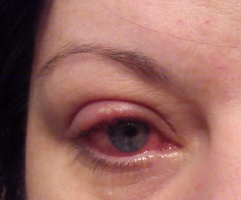 herpes i ögat bilder